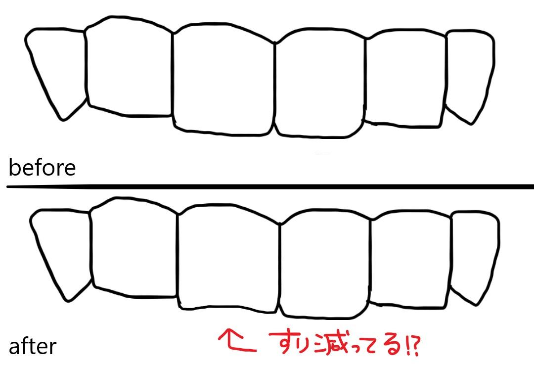 歯ぎしりによる前歯のすり減りイラスト